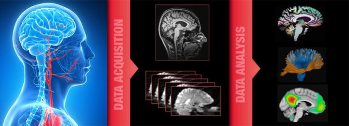 MRI - Magnetic Resonance Imaging Methods Group